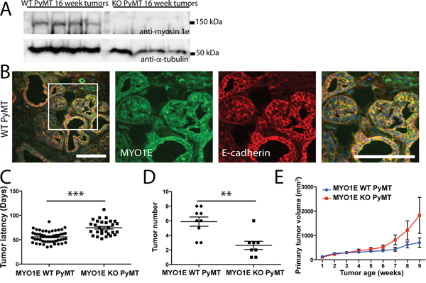 PyMT mice deficient in MYO1E exhibit increased tumor latency but faster increase in volume compared to the MYO1E WT PyMT controls.