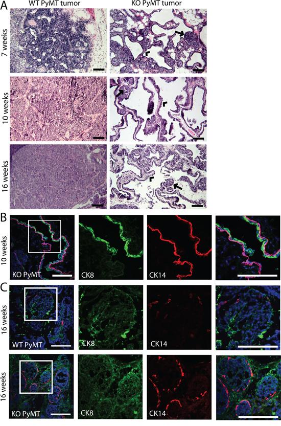 Tumors formed in MYO1E KO PyMT mice display a papillary morphology.