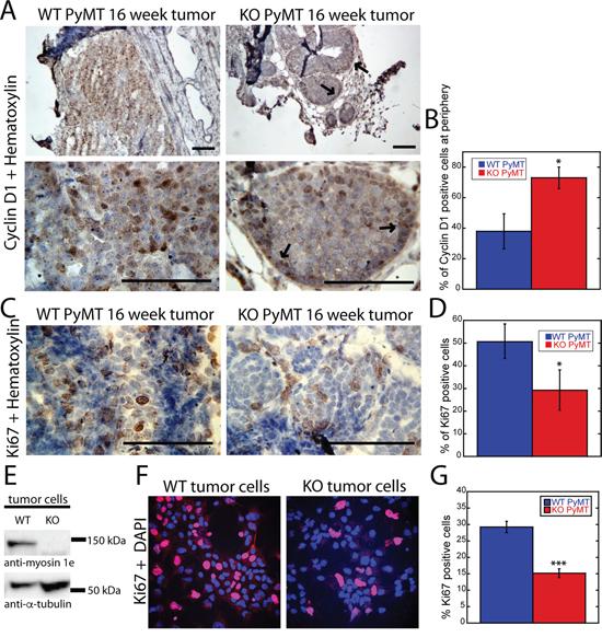 Loss of MYO1E expression delays tumor progression and reduces cell proliferation.