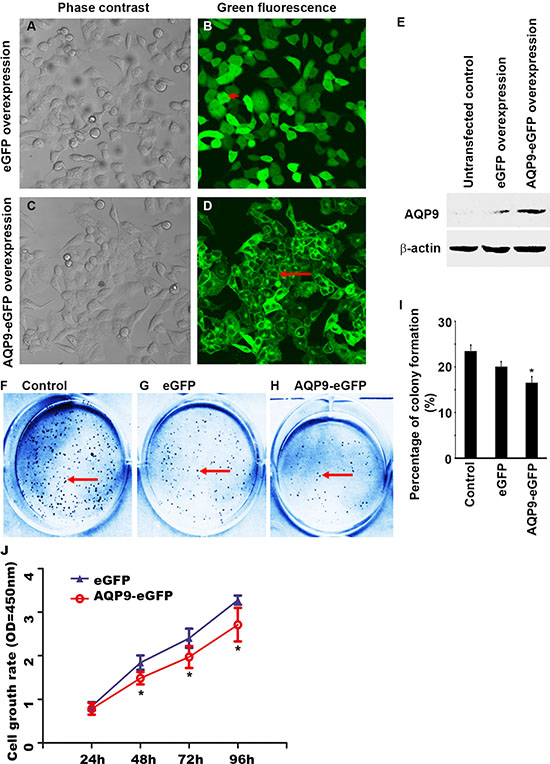 Overexpression of AQP9 in liver cancer cells inhibits cell proliferation.