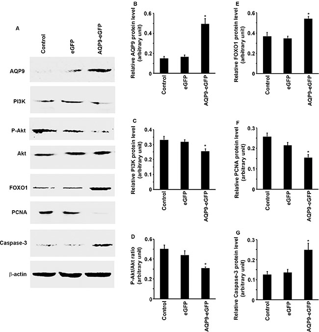 Overexpression of AQP9 in liver cancer cells inhibits PI3K/Akt signaling to increase FOXO1 levels.