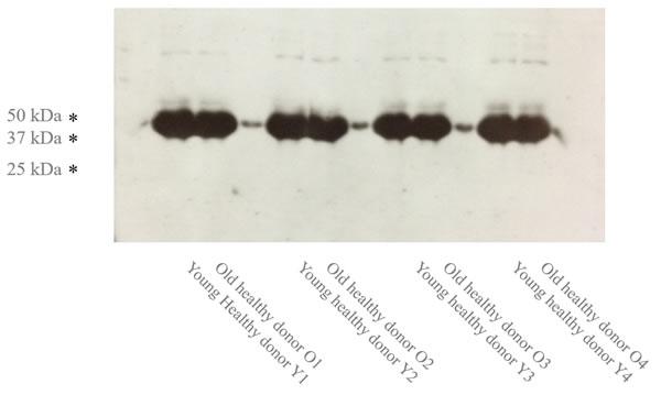 The Age-specific IL7R expression (