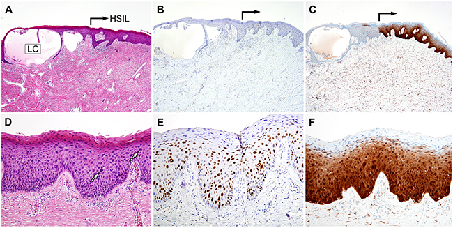 Oncotarget | High-grade squamous intraepithelial lesion