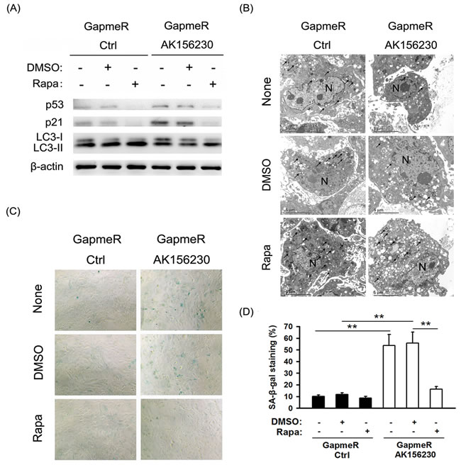 Rapamycin enhances autophagosome formation and rescues cellular senescence induced by AK156230 knockdown in MEFs.