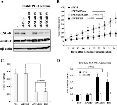 Effect of CK2-NCoR axis inhibition on