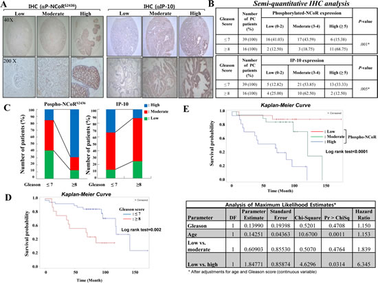 Inverse relationship between IP-10 and NCoR phosphorylation during prostate cancer development.