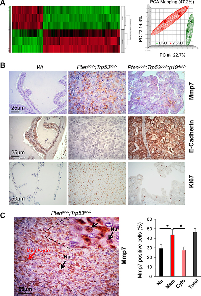Mmp7 is elevated in prostate cancer of Pten/Trp53 mice but decreased by loss of p19Arf in vivo.