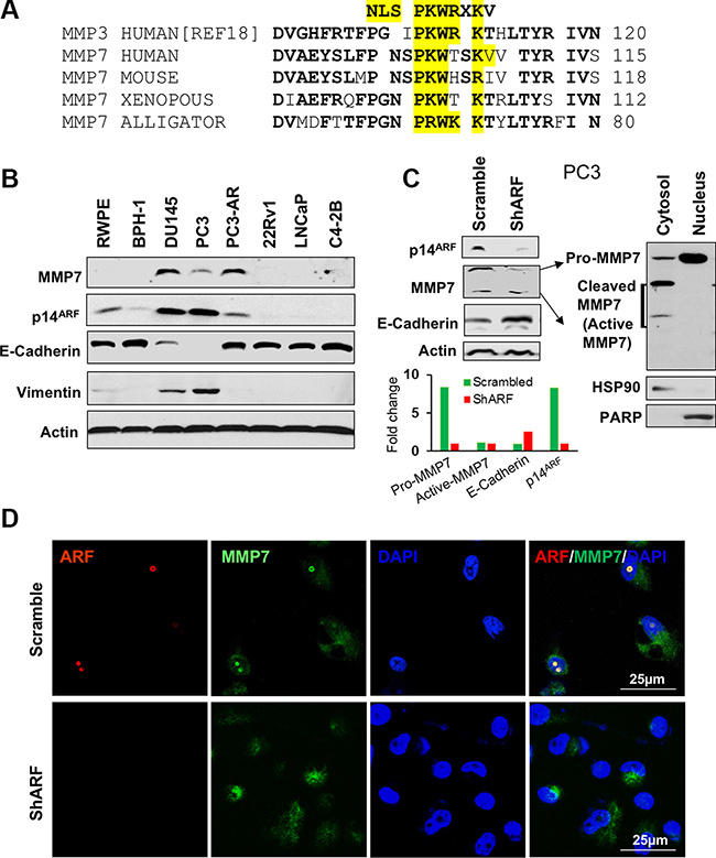 The expression and nuclear localization of MMP7 are decreased by p14ARF knockdown in human prostate cancer cells.