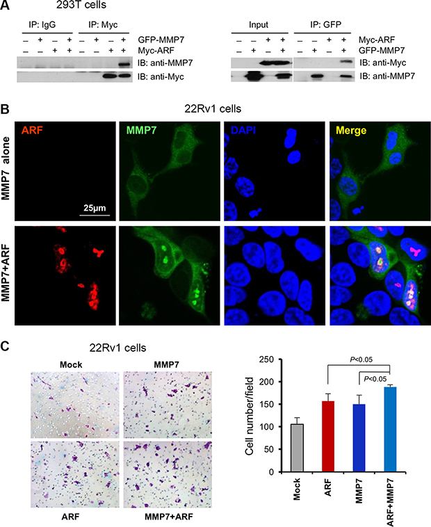 MMP7 interacts with ARF in nucleus to promote cell migration of human prostate cancer cells.