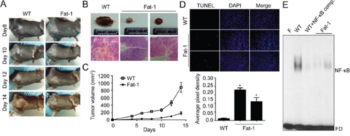 DHA-rich environment retards tumor growth in vitro.