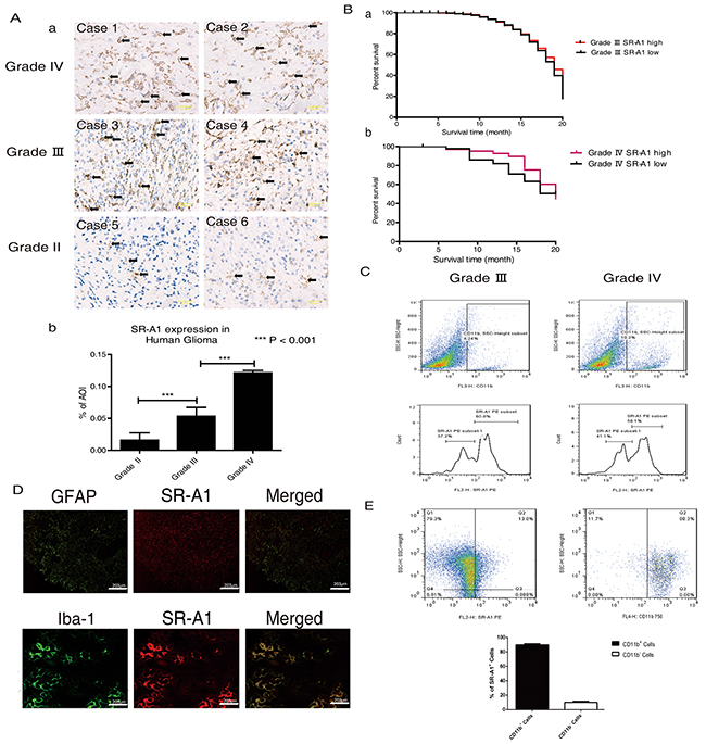 SR-A1-expressing cells influence glioma malignancy and prognosis.