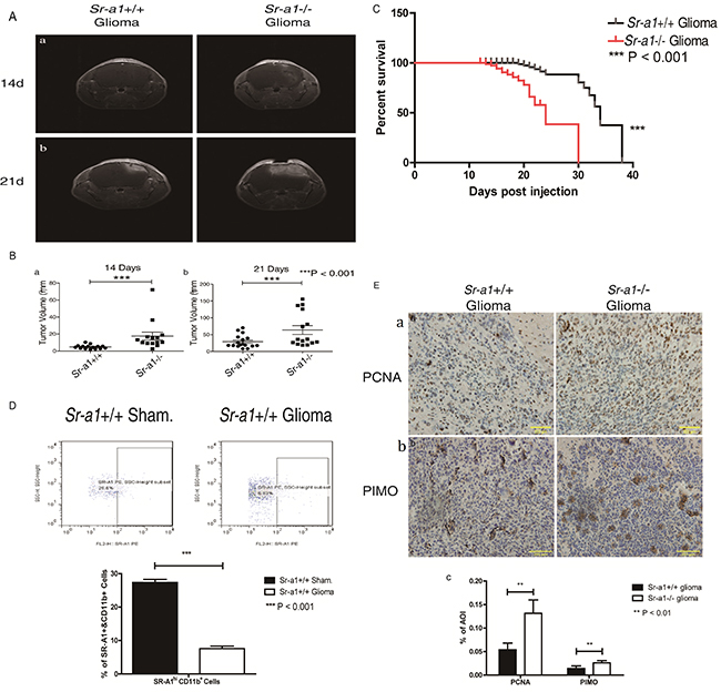 SR-A1 deficiency promotes orthotopic glioma growth and malignancy in mice.