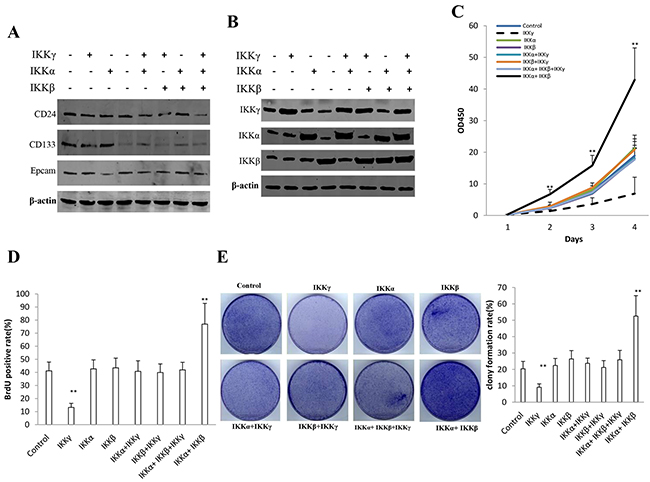 IKKα, IKKβ, IKKγ influence on human liver cancer stem cells (hLCSC) growth in vitro.