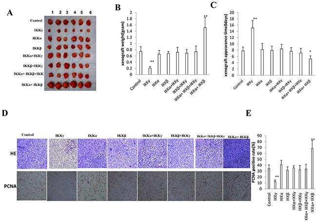 IKKα, IKKβ, IKKγ influence on liver cancer stem cells growth in vivo.