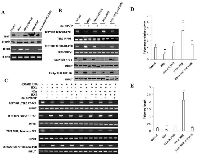 HOTAIR depletion blocks IKKα, IKKβ, IKKγ function on telomere.