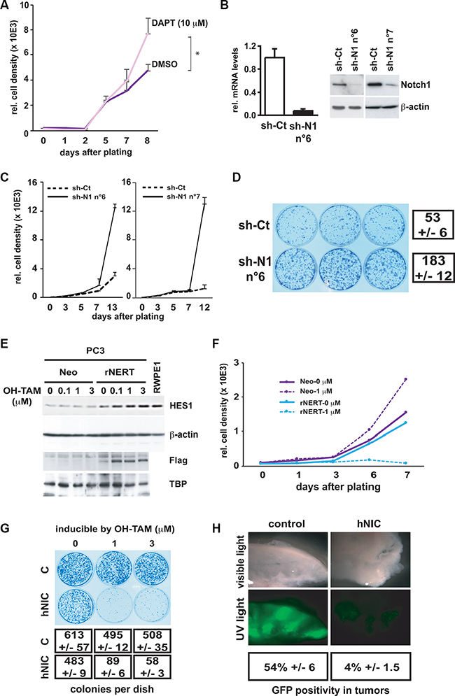 Inhibition of Notch1 expression in normal prostate epithelial cells enhances cell growth whereas activated Notch1 expression in prostate cancer cells inhibits growth and tumorigenesis.