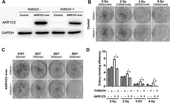 Indomethacin, an inhibitor of AKR1C3 activity, overcomes radiation resistance.