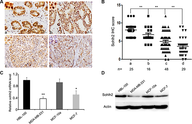 Reduced expression of sohlh2 is correlated with the metastasis of breast cancer.