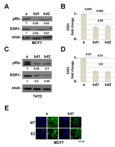 RB1 kd MCF7 and T47D cells down regulate the ESR1 protein.