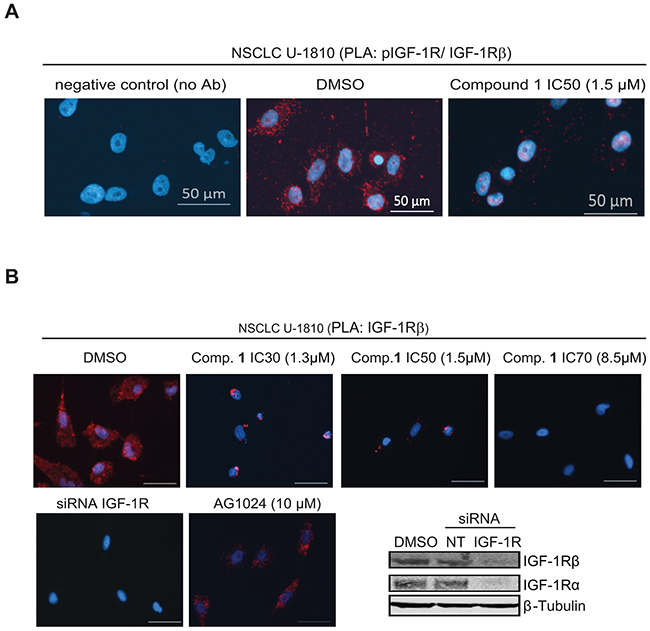 Proximity ligation assay demonstrates inhibition of phosphorylation and degradation of IGF-1R β in tumor cells but not normal diploid fibroblasts upon treatment with compound 1.