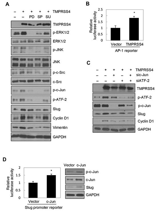 JNK signaling activity and c-Jun/ATF-2 were required for TMPRSS4-mediated Slug and cyclin D1 induction.
