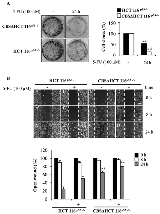 Depletion of CBS decreases cell proliferation and migration.