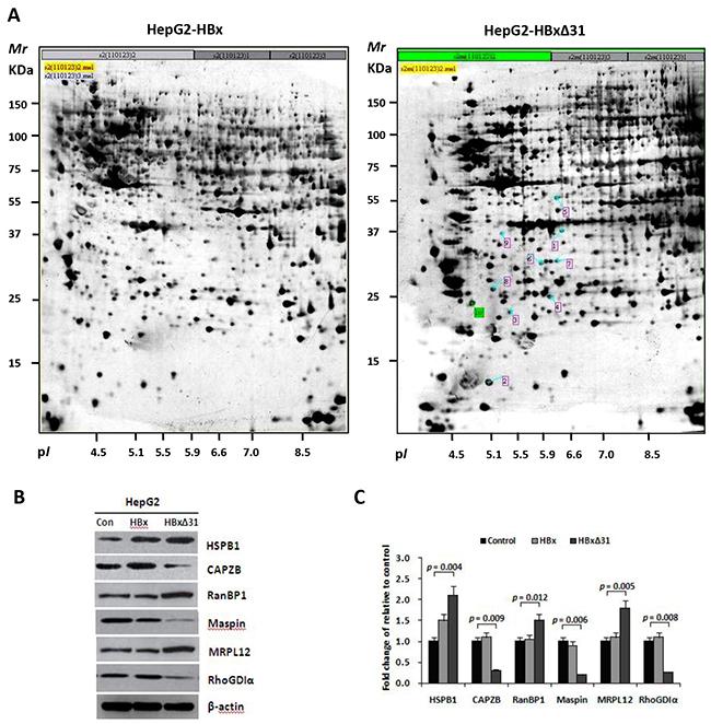 HBxΔ31 deregulates the metastasis-related proteins in HepG2 cells.