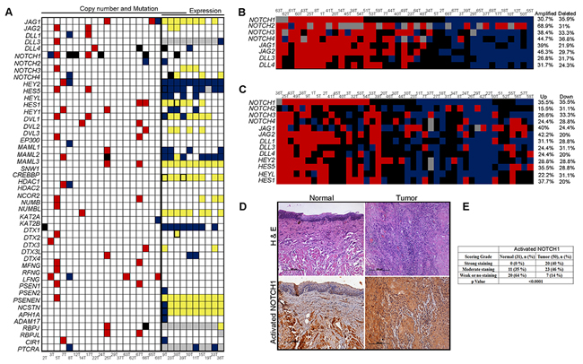 Activation of Notch pathway in early stage tongue squamous cell carcinoma.