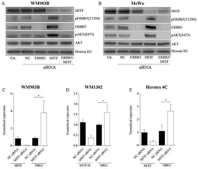 MITF suppress the PI3K-pathway through NRG1-beta/ERBB3 signaling.