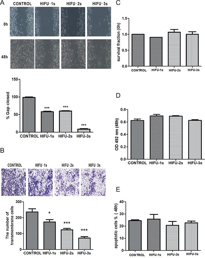 HIFU exposure inhibited migration in B16-F10 cells.