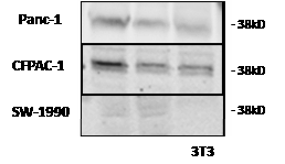 Figure2: LH-RH receptor protein (38 kD) was detected by Western blotting in three human pancreatic cancer lines grown in nude mice.
