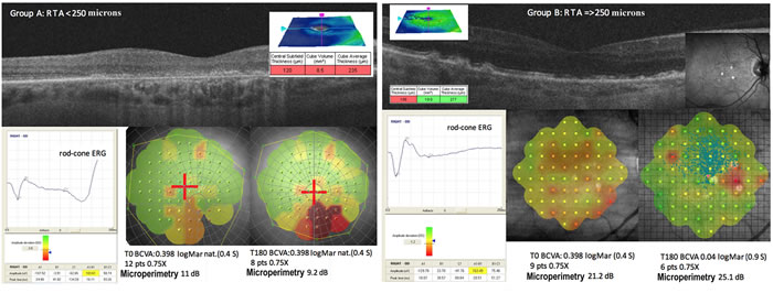 The level of scotopic (rod-cone or maximal) electroretinogram (ERG) is different in A and B groups