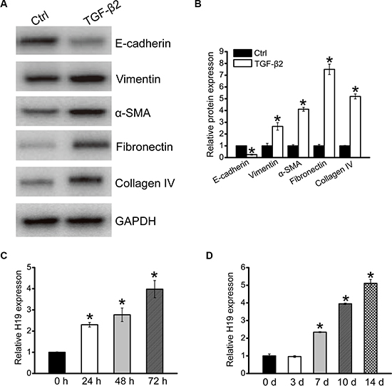 LncRNA-H19 expression is up-regulated in renal fibrosis.