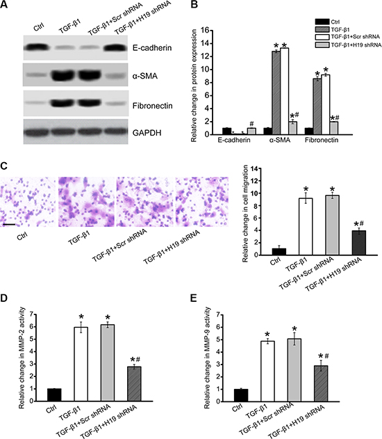 LncRNA-H19 knockdown affects renal cell function and inhibits renal fibrosis in vitro.
