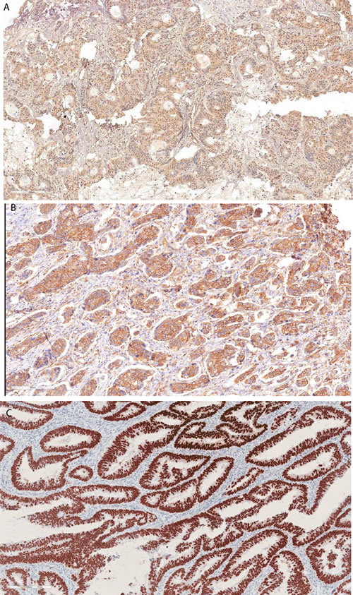 Representative immunohistochemical staining of survivin and p53.