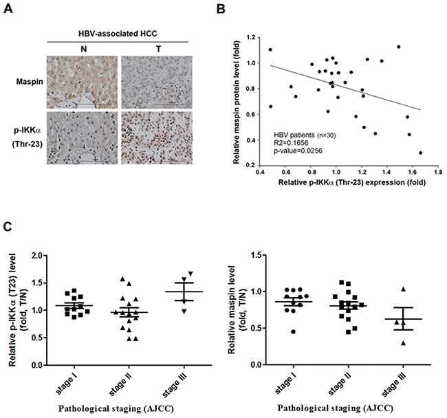 Inverse correlation between phospho-IKKα and maspin expression in HBV-associated HCC patients.