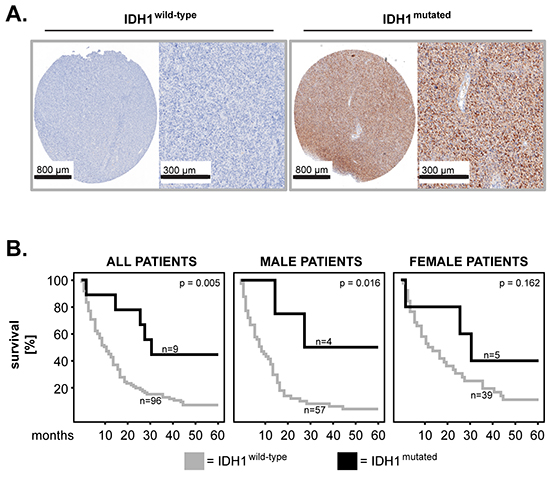 IDH1 mutation in primary GBM: impact on patients' overall survival and sex differences.
