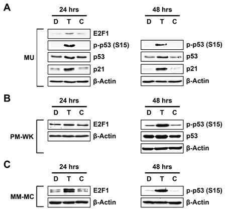 Induction of E2F1, p53, p21 and phosphorylation of p53 (Ser15) in melanoma cells.