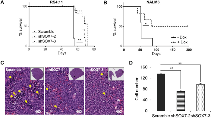The down-regulation of SOX7 expression in BCP-ALL cells decreases leukemogenesis burden.