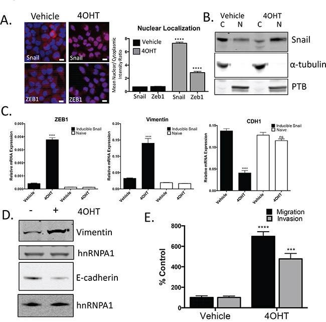 Snail activation increases the migratory and invasive potential of prostate cancer cells.