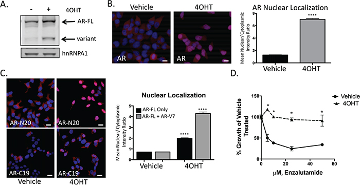 Snail activation increases AR expression and enzalutamide resistance.