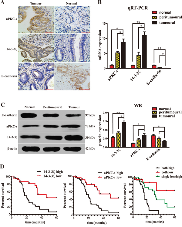 Expression of 14-3-3ζ, aPKC-ι and E-cadherin in patients with CCA. The expression of 14-3-3ζ and aPKC-ι correlates with the prognosis of patients.