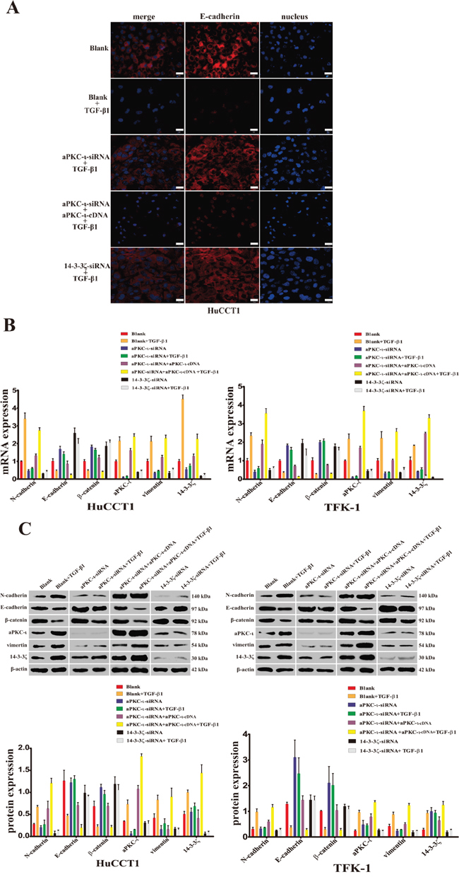 Reduced expression of aPKC-ι and 14-3-3ζ inhibits the TGF-β1-induced EMT in CCA cells in vitro.