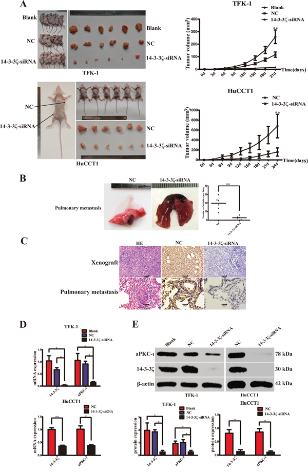 Silence of 14-3-3ζ suppress CCA cell proliferation, invasion and metastasis in vivo.