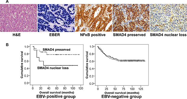 Different clinical implication of SMAD4 expression in EBV-positive and EBV-negative stomach cancer patients.