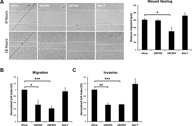 Downregulation of RCP inhibits cell motility.