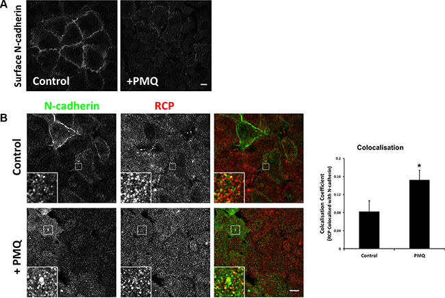 N-cadherin is continuously internalised and recycled in A549 cells.