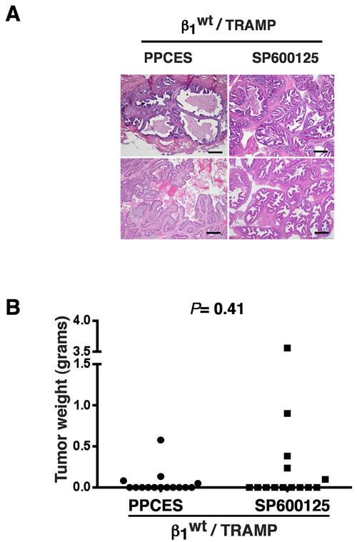 JNK inhibition in β1
