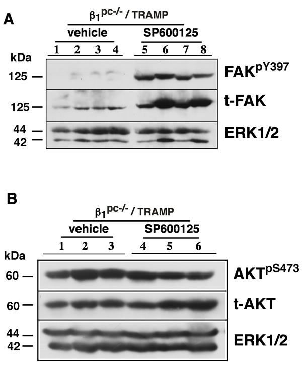 Tumor growth upon irradiation and JNK inhibition in β1