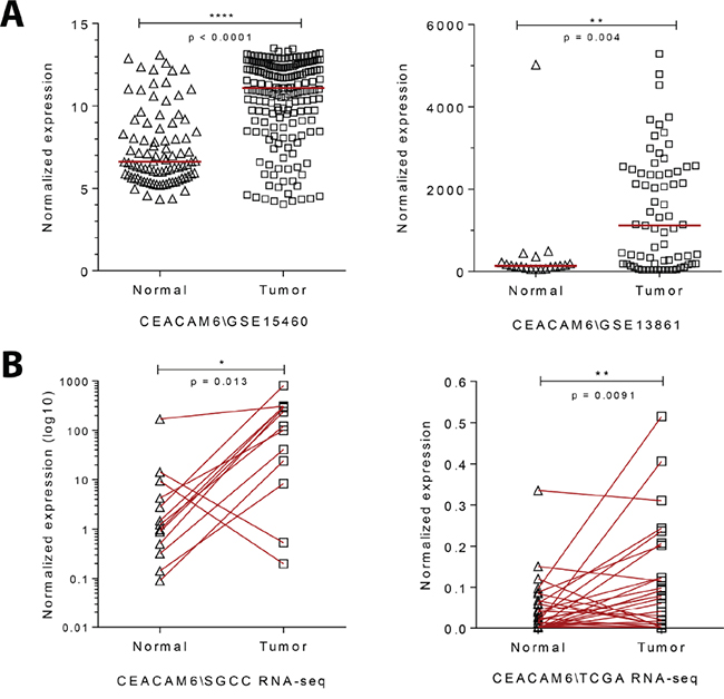 Gene expression analysis of gastric cancers show an enrichment for CEACAM6.